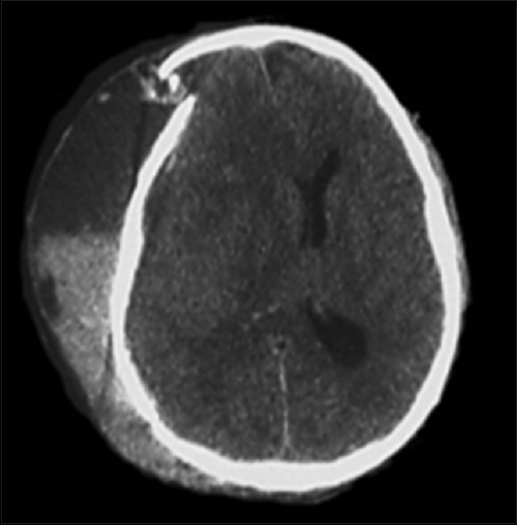 Figure 1: Axial section of a brain CT scan showing a subcutaneous bleeding compressing the craniectomy flap that has sunk into the skull creating a cerebral herniation. We note the presence of sediment of liquid-liquid level in the subcutaneous collection witnessing of a bleeding of different ages