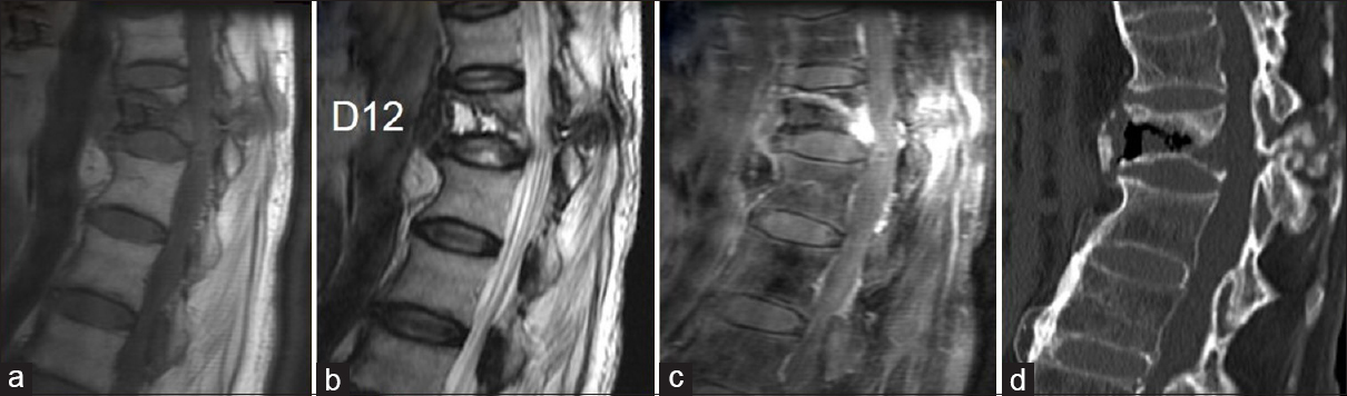 Figure 9: 61-year-old presented with fever for one week and remote history of trauma about a month ago. MRI showed a wedge compression fracture of D12 vertebra with a focal linear hypo intensity on T1 (a) and hyper intensity on T2 (b) with enhancement on post contrast T1 image (c). CT (d) in addition to the above mentioned findings showed diffuse osteoporosis in the form of decreased density of the vertebra with coarsened trabeculae. Lab investigations were also concordant with the diagnosis of osteoporosis