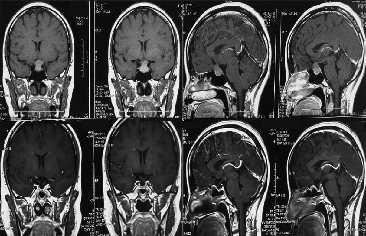 Figure 4: The case of a 42-year-old female who suffered from prolactin-secreting adenoma; the endocrine disorder was remitted after the surgery. (Above) Preoperative head magnetic resonance images, (below) postoperative head magnetic resonance images taken 3 months later
