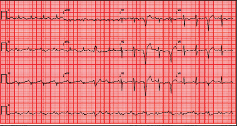 Figure 2: Twelve-lead ECG showing sinus tachycardia, ventricular premature contractions of LBBB morphology, and right atrial enlargement with T-wave inversions in V1–V4 leads