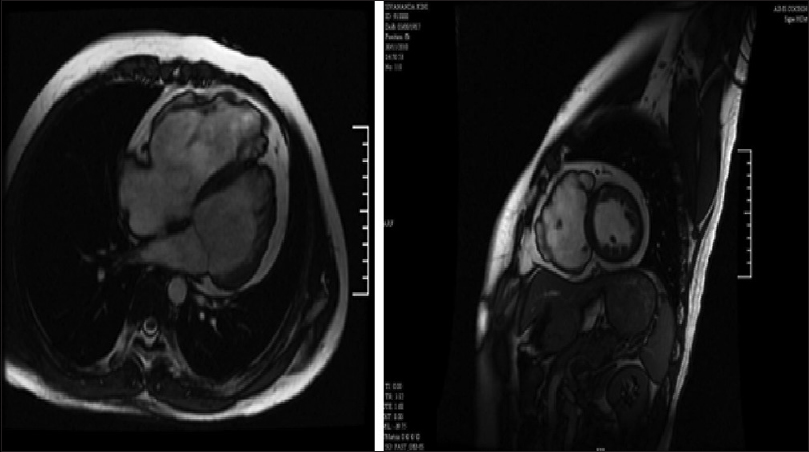 Figure 4: The MRI showing thinning of the right ventricular free wall with multiple outpouchings and contrast enhancement of the thinned out right ventricular free wall compatible with fibro-fatty degeneration