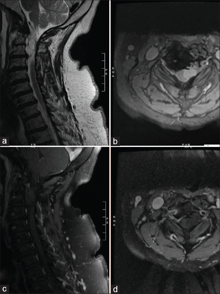 Figure 1: Pre-operative MRI demonstrating cystic epidural mass ventral to the cord at C2-3 with extension to the left neural foramen and foramen transversarium. Figures 1a and 1b: T2W MRI. Figures 1c and 1d: post-gadolinium MRI