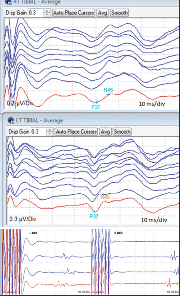 Figure 4: Tibial somatosensory potential and bulbocavernosus reflex responses at the baseline and after closing dura (red color is baseline)