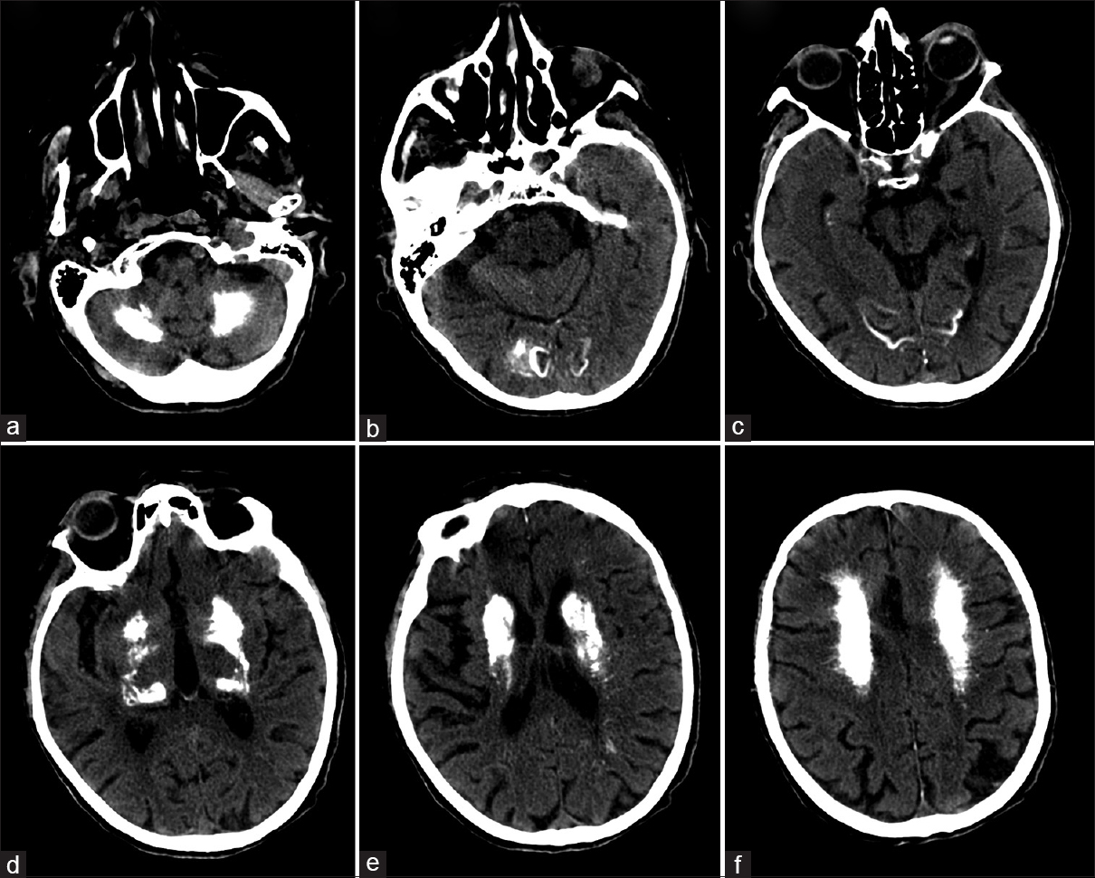 Figure 2: Brain CT shows bilateral and symmetrical calcification of dentate nuclei (a), occipital cortex (b and c), thalami (d), basal ganglia (d and e), and centrum semiovale (f)