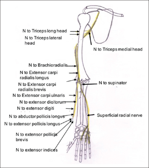 Figure 6: Diagram showing the normal course of radial nerve and its branches (N – Nerve)