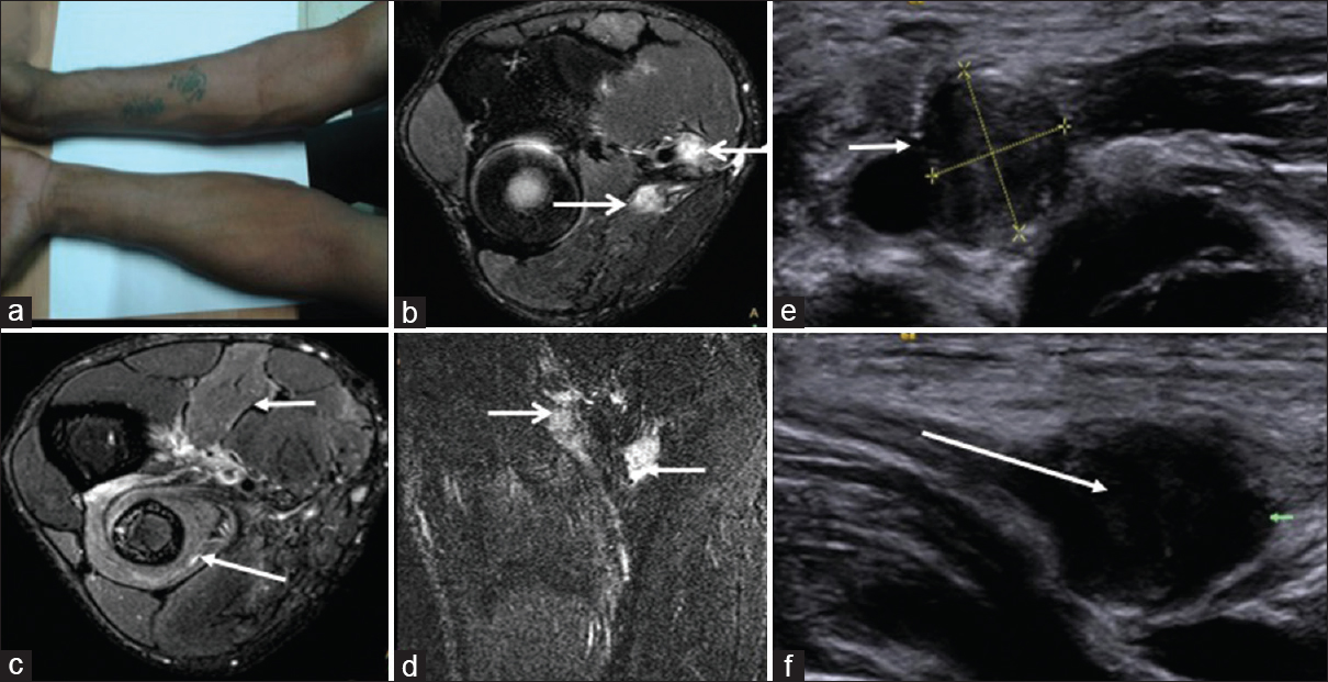 Figure 7: Posttraumatic median and radial nerve neuroma. (a) Clinical photograph showing gross atrophy of muscles of right forearm. (b) SE T2 W axial fat suppressed images showing both median and radial nerve neuromas (arrows) with marked T2W hyperintensity (c) T2 hyperintensity in the posterior compartment (supplied by the radial nerve) and anterolateral compartment muscles (supplied by the median nerve) suggestive of denervation changes. (d) Coronal STIR image shows similar findings of both nerve neuromas. (e and f) Sonogram showingmarked thickening with altered echogenicity of the median nerve and radial nerve with neuroma formation in transverse and sagittal plane, respectively