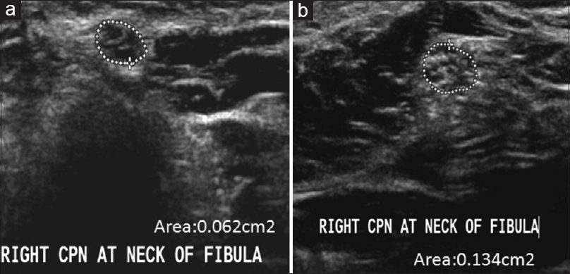 High resolution ultrasonography of peripheral nerves in