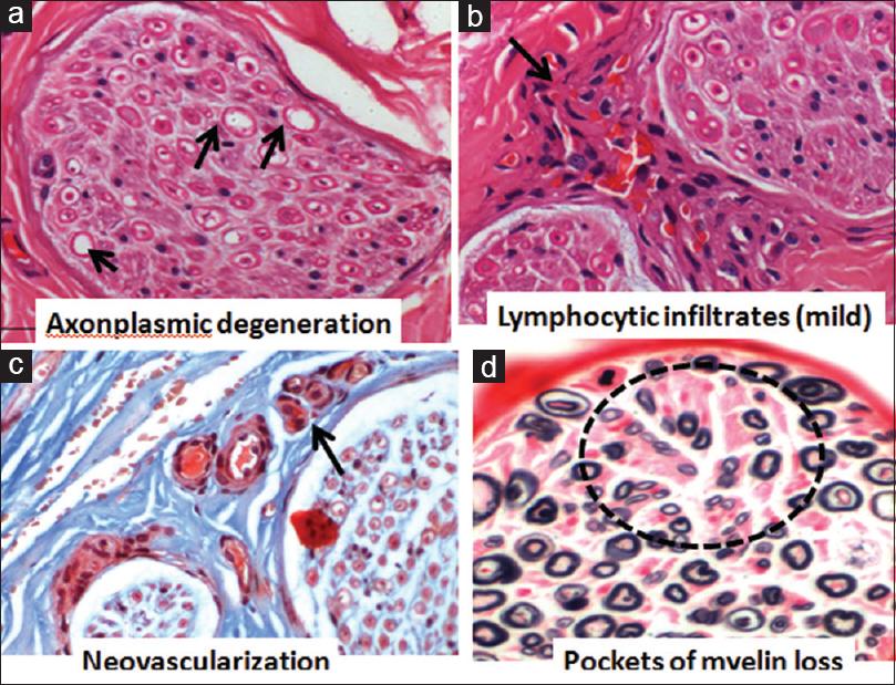 Patterns of peripheral neuropathy in Sjogren's syndrome in a