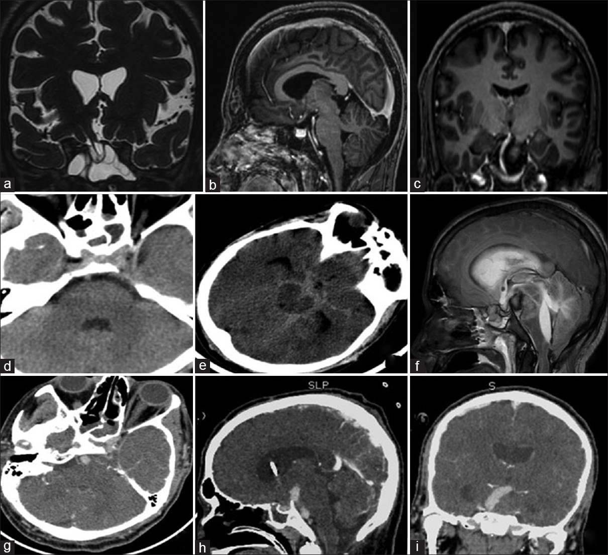 Figure 1: MRI brain done at the time of surgery for CSF rhinorrhea in 2015, showed a defect in the planum sphenoidale on the right side and an encephalomeningocele (a). Contrast MR sagittal and coronal images showed a normal basilar artery (b and c). A CT scan brain done after admission for meningitis in 2017, showed normal caliber of basilar artery (d). A CT brain performed on the day of ictus showed Fischer Grade 3 diffuse subarachnoid hemorrhage in basal cisterns (e). An MRI brain sagittal image (f) and CT angiogram with reconstructed coronal and sagittal images revealed the acute evolution of the basilar artery fusiform aneurysm within a period of 2 days(g-i)