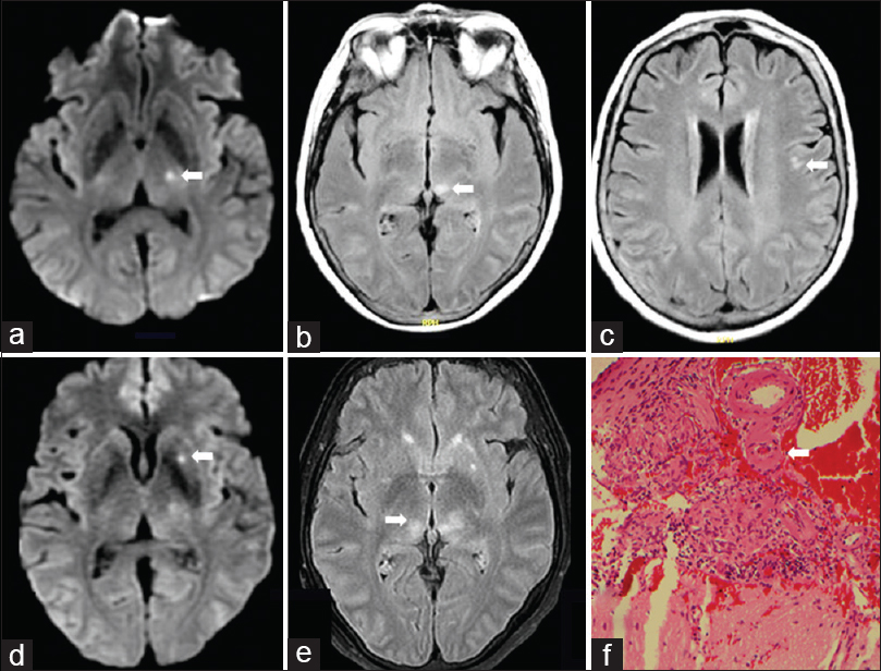 Figure 1: Serial brain MRI and Histopathology. (a) Admission diffusion-weighted axial image (DWI) shows an acute small infarct in the left thalamus (arrow). (b and c) Admission fluid-attenuated inversion recovery (FLAIR) axial images show small subacute infarcts in the left thalamusand fronto-temporal region (arrows). (d) Follow-up DWI obtained 4 days after admission shows a new infarct in the left putamen (arrow). (e) Follow-up FLAIR obtained 4 days after admission shows a new subacute infarct in the right thalamus (arrow) and evolution of the prior infarct in the left thalamus. (f) Histopathology (hematoxylin-eosin stain) from the right hemisphericleptomeningeal brain biopsy shows a peri-vascular non-caseating granuloma with multinucleated giant cell (arrow) and lymphocytic infiltration