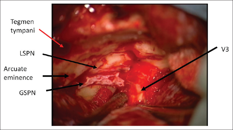 Figure 9: The dura propria of the temporal lobe is peeled back from dural cover over V3. This is interdural dissection. The limit of this dissection is tentorial edge and exposes Meckel's cave