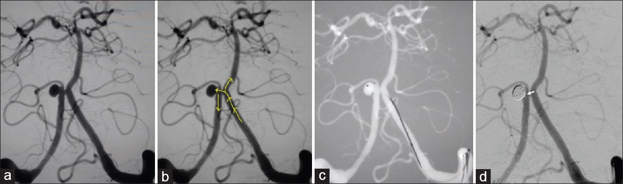 Figure 2: Left vertebral angiography demonstrating the VBJ aneurysm (a) with yellow arrows showing the blood flow direction and relation of aneurysm location with flow direction (b). Microcatheter has been positioned within aneurysm sac (c). Postcoiling angiogram (d) revealing complete aneurysm occlusion with a tiny thrombus at aneurysm neck (white arrow), which was subsequently lysed with intra-arterial abciximab