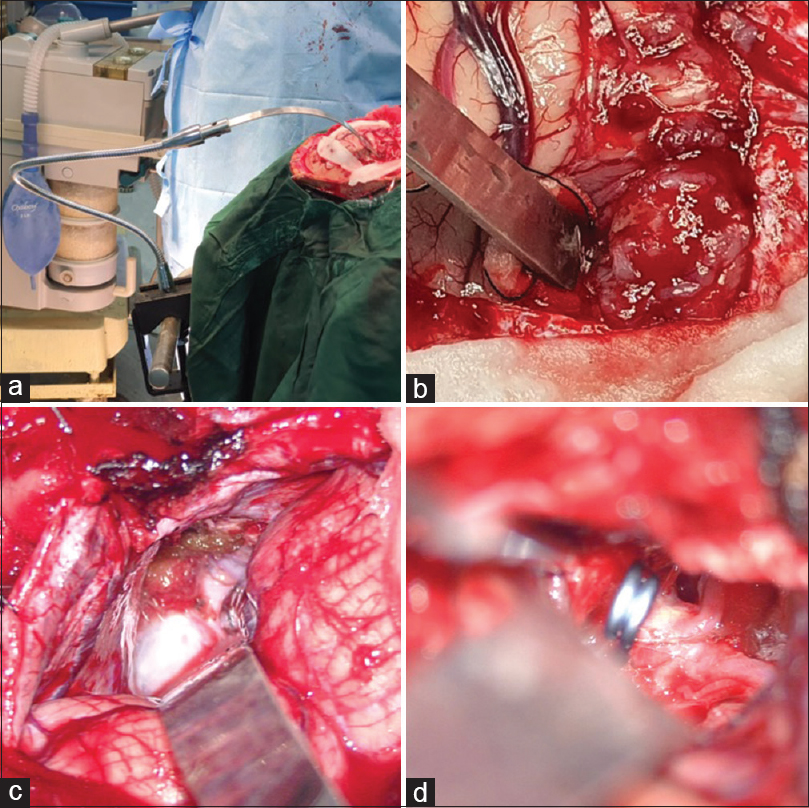 Figure 2:  Intraoperative image showing the retractor fixed to the OT table through an elephant rod (a). Intraoperative photographs showing the retractor being used in a case of convexity meningioma (b), Infratentorial Supracerebellar approach for a pineal tumour (c) and clipping of Acom aneurysm (d)