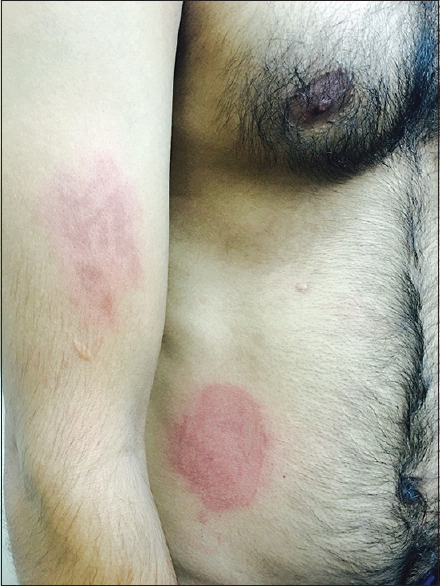 Figure 1:  Oval erythematous macules seen over right arm and trunk