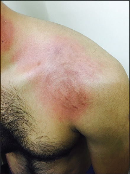 Figure 2:  Annular erythematous macule seen over the left shoulder with interspersed hyperpigmented streaks