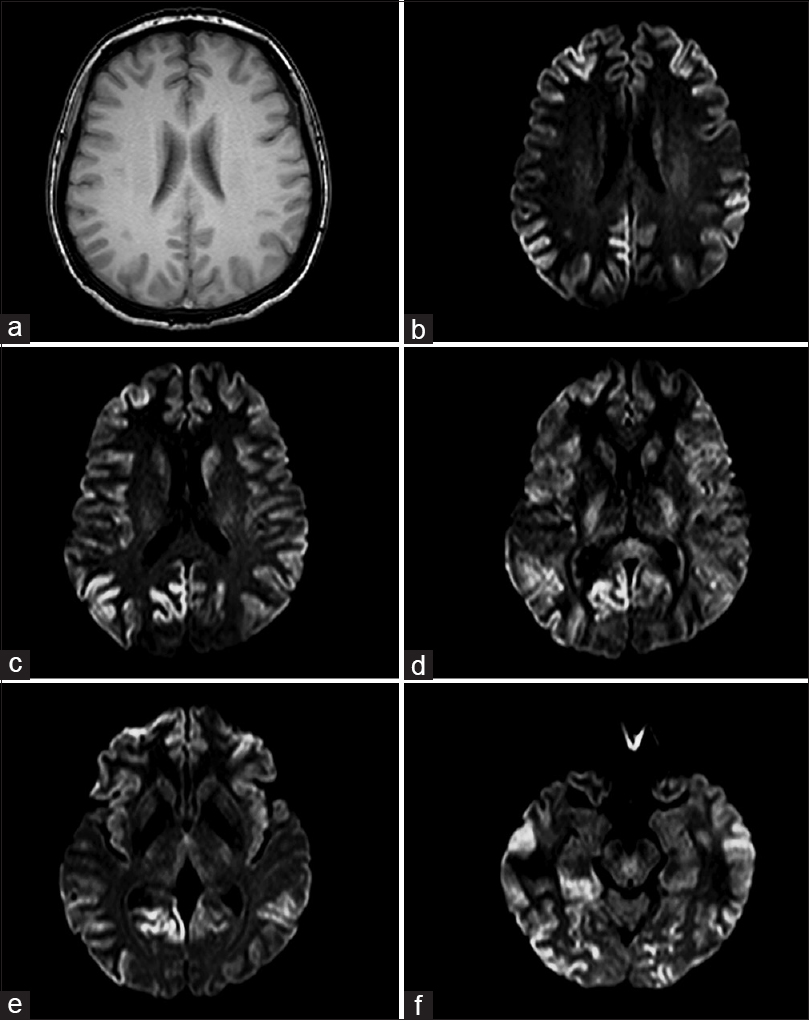 Figure 1: (a) MRI T2-weighted image showing global parenchymal loss. (b-f) DWI revealing multifocal hyperintensities in cortical gyri at bilateral frontal (b), parietal (c), temporal and occipital lobes (f), as well as at basal ganglia and thalamus (c-e)
