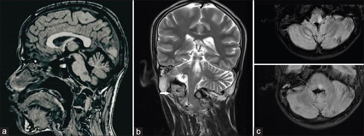 Figure 1:  (a) Sagittal T1 hypodensity at left upper medulla. (b) Coronal T2 MRI hyperintensity at the same location with kinking of the brainstem, cervical spine scoliosis, and occipital assimilation of the atlas (arrow). (c) Axial FLAIR left medullary hyperintensity