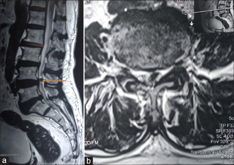 Figure 1: (a) T2-weighted sagittal section of the Lumbar spine MRI shows a mass lesion with iso-intense to hyper-intense signal in the epidural space at L4-L5 vertebral level. (b) Axial image of the corresponding section shows the left sided location of the cyst compressing the thecal sac and displacing the roots laterally towards right
