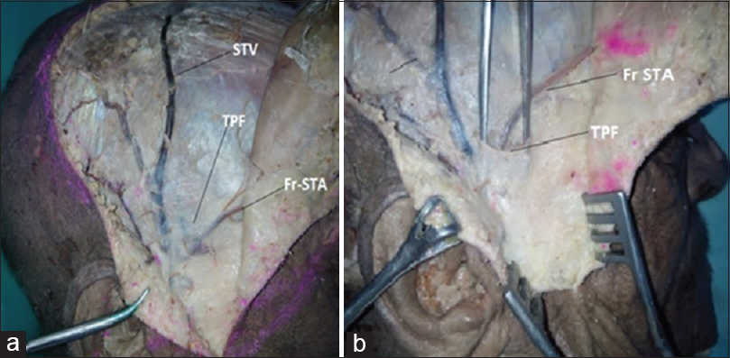 Figure 4: Temporoparietal fascia covering STA, STV and FTFN. TPF- Temporoparietal fascial layer, Fr-STA- Frontal branch of STA, STV- Superficial temporal vein. (Right side)