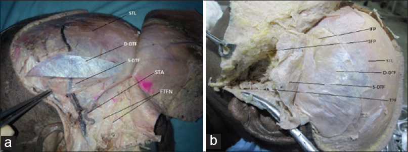 Figure 5: Dissection of the layers of temporal fascia. STL-Superior temporal line, S-DTF-superficial layer of deep temporal fascia, D-DTF-Deep layer of deep temporal fascia, SFP- superficial fat pad, IFP- intermediate fat pad. 5a-Right side; 5b-Left side