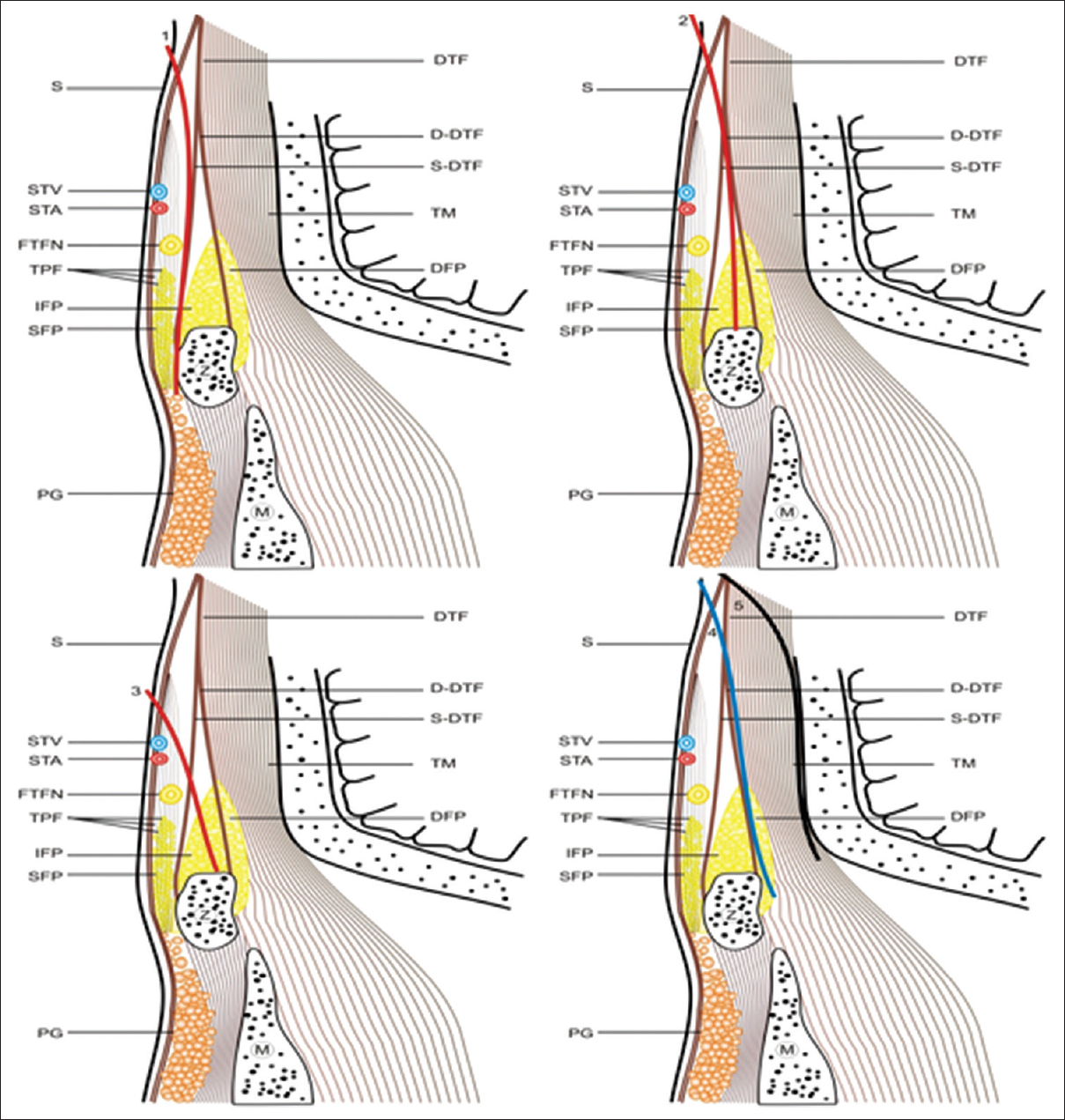 Figure 9: Various surgical approaches shown in figure [1, 2, 3-interfascial (red color line), 4-subfascial (blue line), 5-sub muscular approach (black line)]