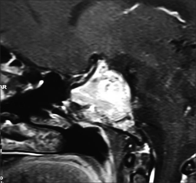 Figure 9: Contrast enhanced T1-weighted sagittal MRI scan shows a sellar-suprasellar macroadenoma with a retrosellar extension resulting in the 'clival cut-off sign'